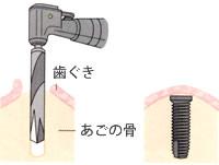 あごの骨にインプラント(フィクスチャー)を埋め込みます。この手術は局部麻酔で行います。 簡単なものでは抜歯程度。入院の必要もありません。